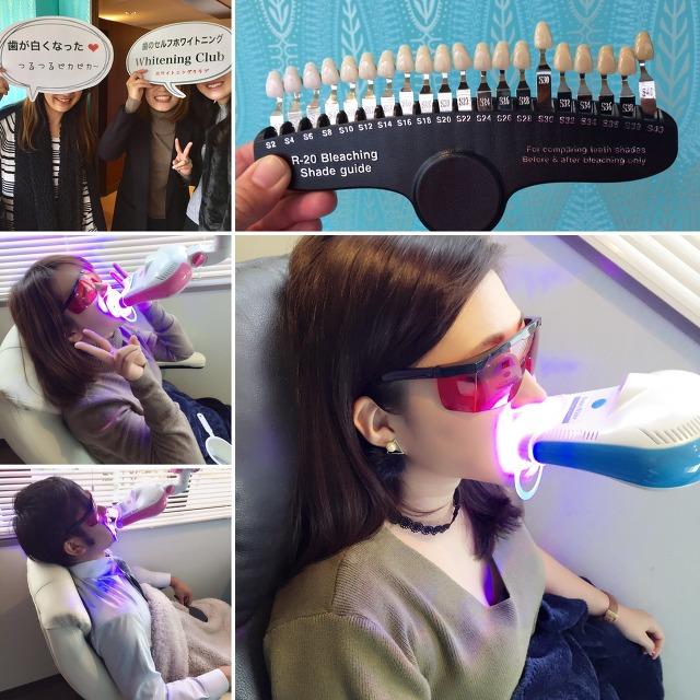 【新規】歯のセルフホワイトニング